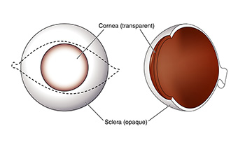 Corneal Transplant illustration