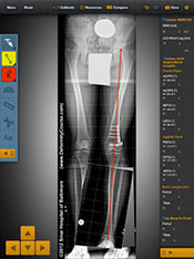 Bone Ninja App - Foot Measurement