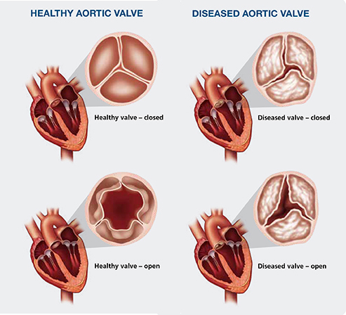 Valvular Heart Valve Disease Baltimore Md Groundbreaking
