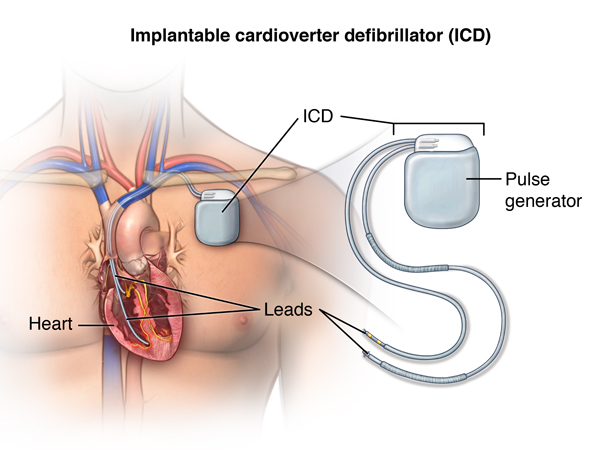 Implantable defibrillator insertion cardiovascular - Ablation chambre implantable ...