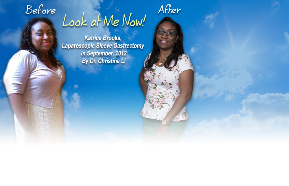 Before and After. Look at Me Now! Katrice Brooks, Laparoscopic Sleeve Gastrectomy in September, 2012 by Dr. Christina Li