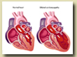 Cardiomyopathy Successful treatment of heart muscle disease.