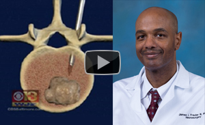 Dr. James Frazier, neurosurgeon, eases the pain for patients with cancer.