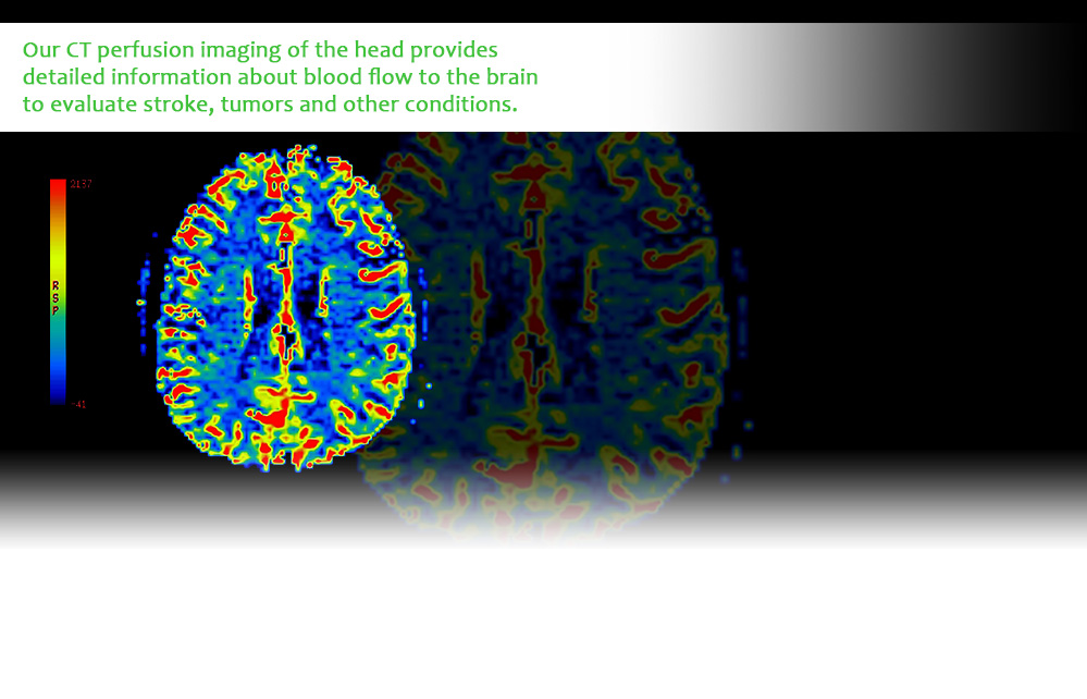 Our CT perfusion imaging of the head provides detailed information about blood flow to the brain to evaluate stroke, tumors and other conditions.