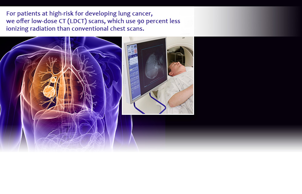 For patients at high-risk for developing lung cancer, we offer low-dose CT (LDCT) scans, which use 90 percent less ionizing radiation than conventional chest scans