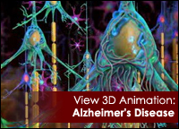 View 3D Animation: Alzheimer's Disease