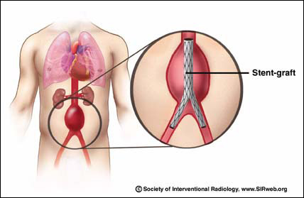 Abdominal Aortic Aneurysm – Treatments