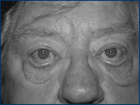 The Aging Eyelid