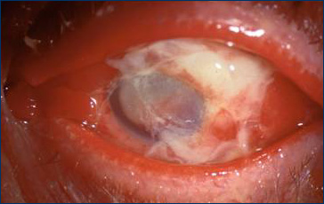 Intraocular Infection (Endophthalamitis)