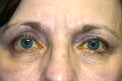 After Upper Eyelid Blepharoplasty