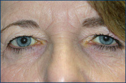 Before Upper Eyelid Blepharoplasty