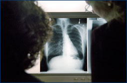 Image of Chest X-rays