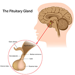 Pituitary Tumors