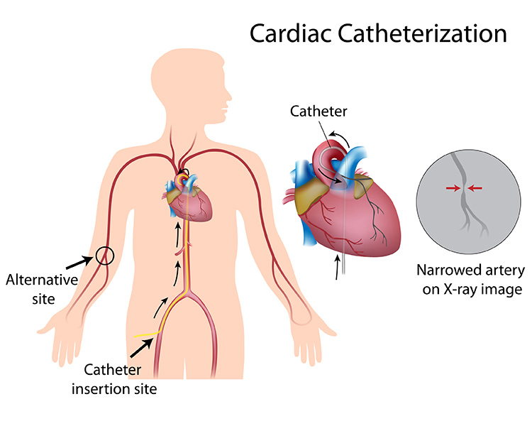 CardiacCatheterization on tr band after care
