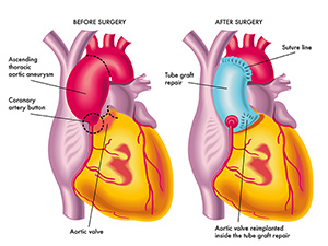 thoracic-aortic-aneurysm