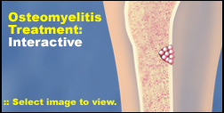 Click here to view the Osteomyelitis Treatment Interactive