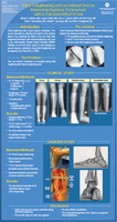 Tibial Lengthening with an Internal Device: Preventing Equinus Contracture with a Calcaneotibial Screw