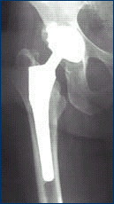 X-ray of a Prosthetic Hip Joint