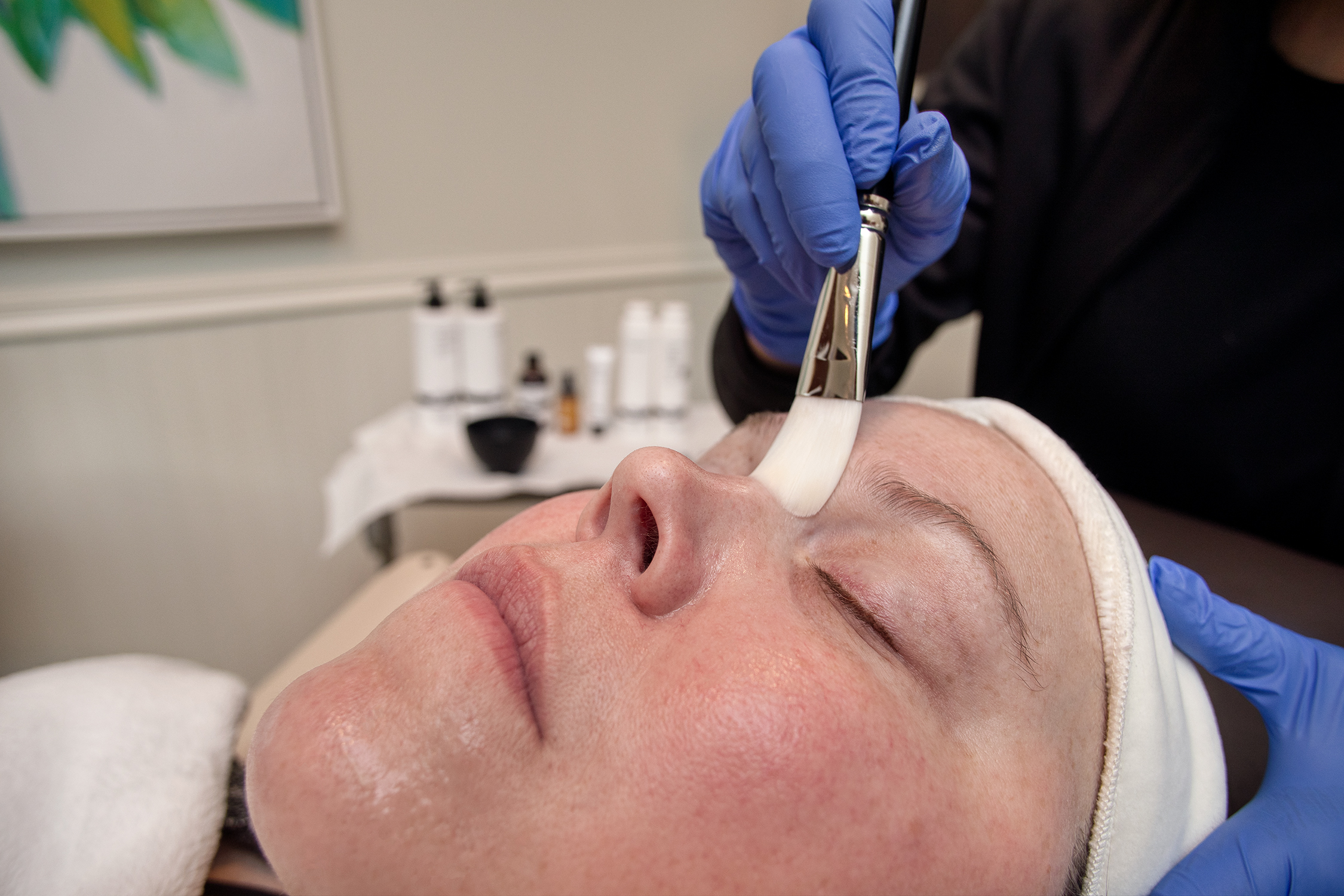 MedSpa Facial Treatment Krieger Eye Institute