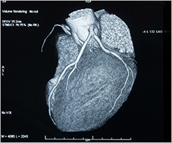 CT Scan Heart