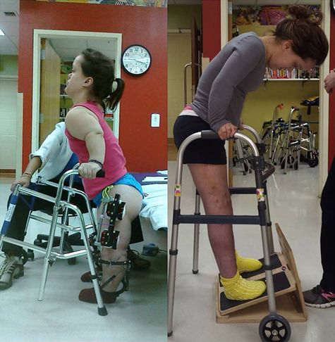 A before and after photo of a young woman holding a walker while doing physical therapy for limb lengthening