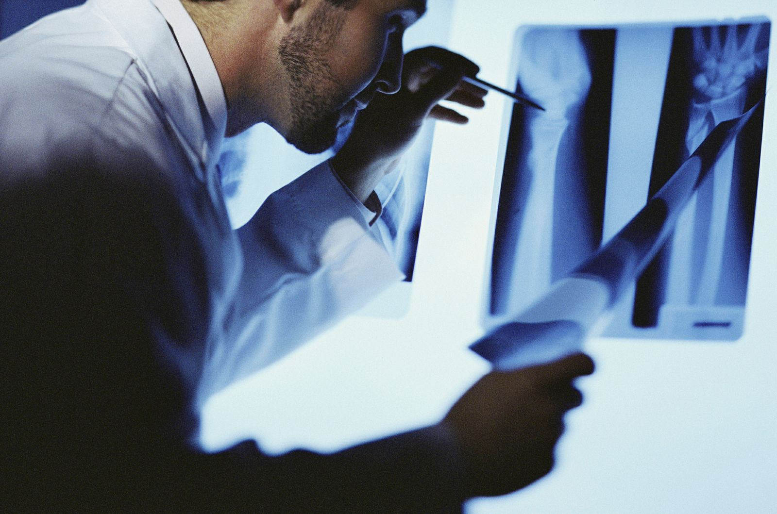 A male doctor looking at x-rays
