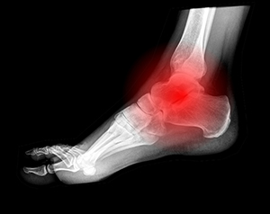 X-ray of a foot from the side with a red mark indicating Charcot foot
